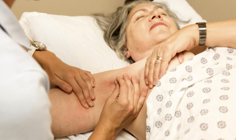 Lymphoedema involves the retention of large amounts of protein-rich fluid causing chronic swelling, usually in people's limbs but it can also occur in various parts of the body such as breasts, trunk, face(head) & neck or genital area.