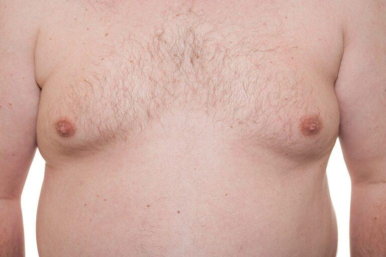 gynecomastia, man boobs