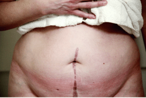 Abdominal scar after surgery