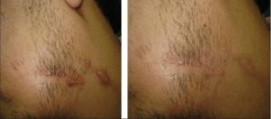 Hypertrophic-scar-before-and-after-silicone-gel