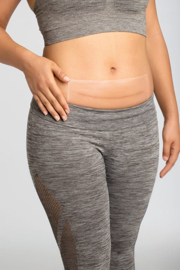 Curascar square patches ideal for abdominal scars